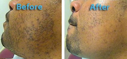 before-and-after-razor-bumps