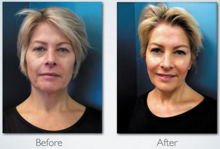 celluma-aging-before-and-after