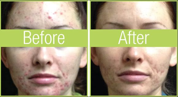 celluma-acne-before-and-after