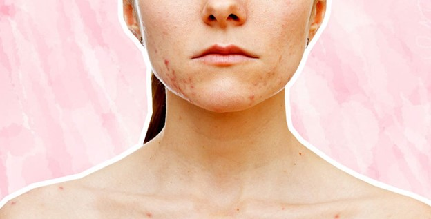 Acne Clearing Program at Face Fitness Professional Skin Care